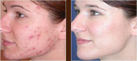 acne foto1