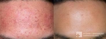 acne foto2