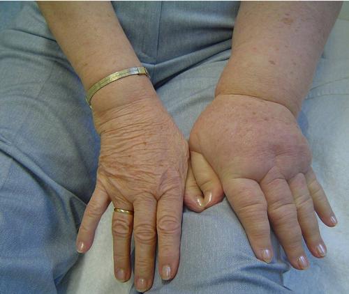 oedeemtherapie oedeem lymfdrainage oedeemtherapie