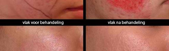 Nieuw bij Huidtherapie Twente: De Dermapen